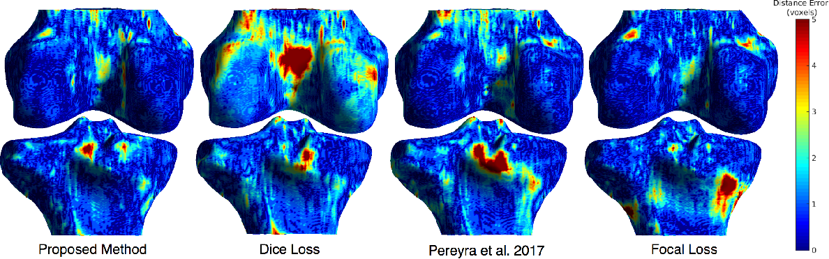 Figure 2 for Distance Map Loss Penalty Term for Semantic Segmentation