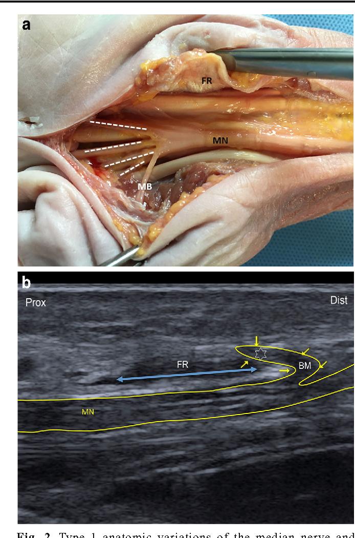 Ultrasound imaging of the thenar motor branch of the median nerve: a ...