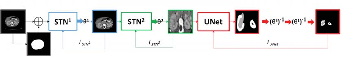 Figure 3 for Automatic size and pose homogenization with spatial transformer network to improve and accelerate pediatric segmentation