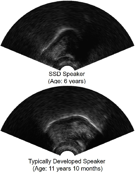 Figure 1 for Convolutional Neural Network-Based Age Estimation Using B-Mode Ultrasound Tongue Image