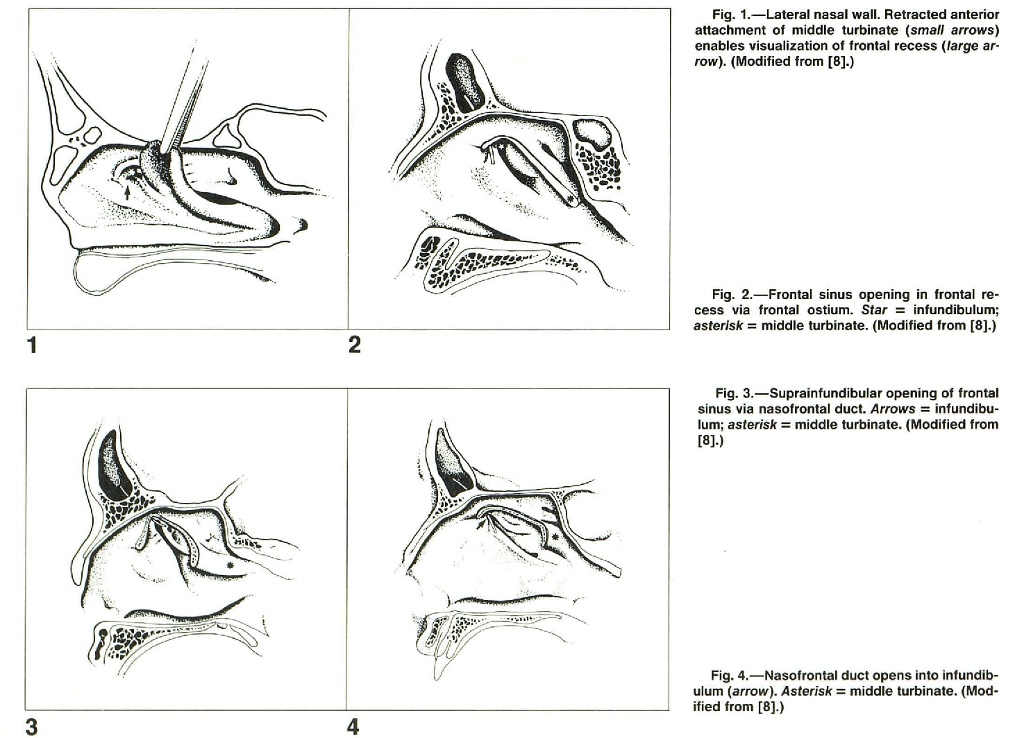 The Relationship Between Frontal Sinus Drainage and Osteomea , tal ...