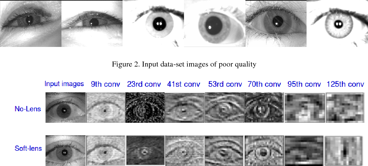Figure 4 for GHCLNet: A Generalized Hierarchically tuned Contact Lens detection Network