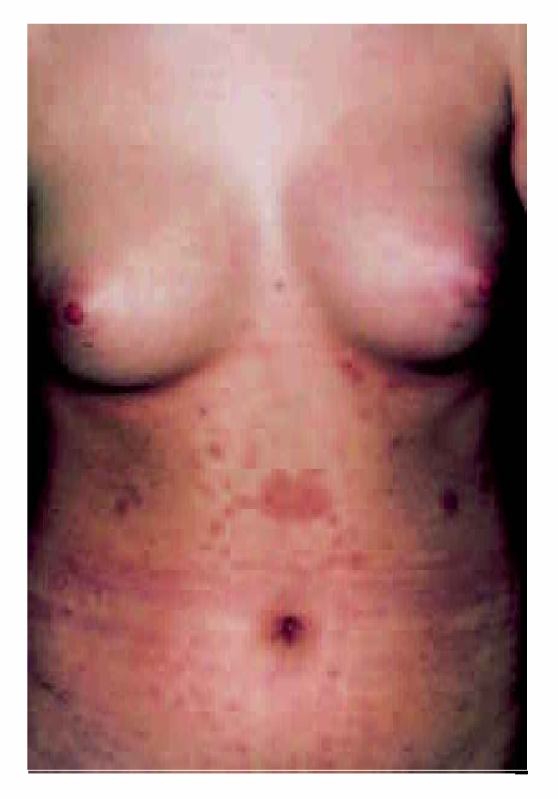 Figure 1 From Long Lasting Christmas Tree Rash In An Adolescent