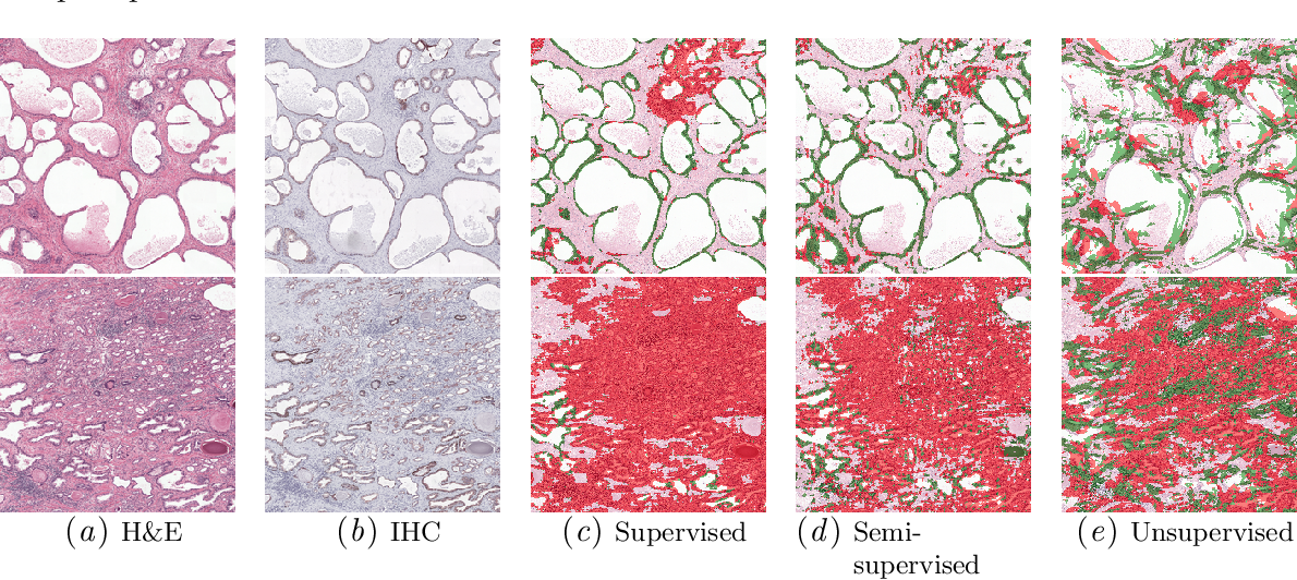 Figure 2 for Dealing with Label Scarcity in Computational Pathology: A Use Case in Prostate Cancer Classification