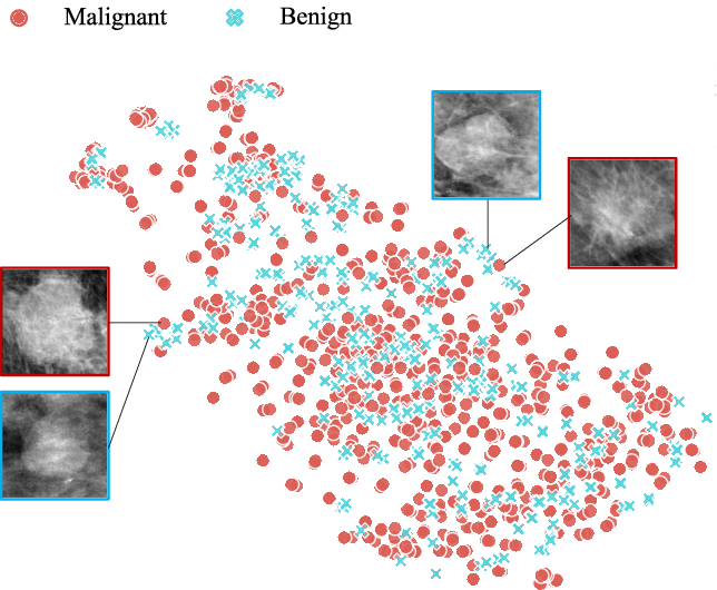 Figure 1 for COIN: Contrastive Identifier Network for Breast Mass Diagnosis in Mammography