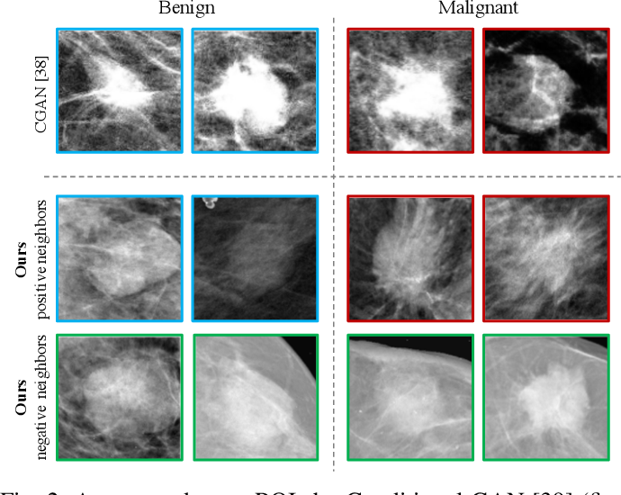 Figure 2 for COIN: Contrastive Identifier Network for Breast Mass Diagnosis in Mammography