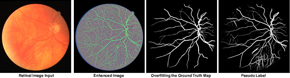 Figure 3 for Study Group Learning: Improving Retinal Vessel Segmentation Trained with Noisy Labels