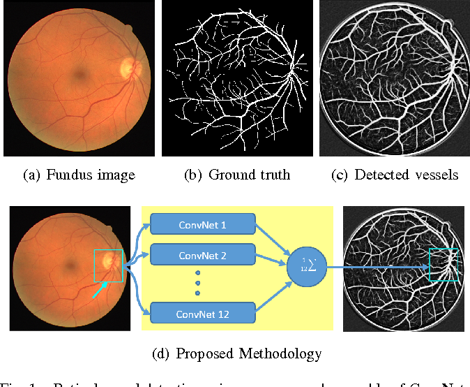 Figure 1 for Ensemble of Deep Convolutional Neural Networks for Learning to Detect Retinal Vessels in Fundus Images