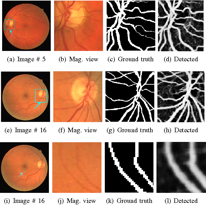 Figure 3 for Ensemble of Deep Convolutional Neural Networks for Learning to Detect Retinal Vessels in Fundus Images