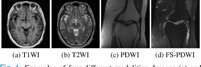 Figure 1 for Accelerated Multi-Modal MR Imaging with Transformers