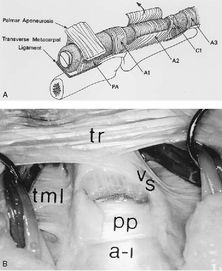 Figure 1 from Palmar and digital flexor tendon pulleys. - Semantic ...