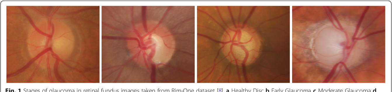 Figure 1 for Two-stage framework for optic disc localization and glaucoma classification in retinal fundus images using deep learning