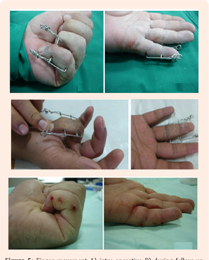 Figure 5 from Treatment of Proximal Interphalangeal ( PIP ) Joint ...