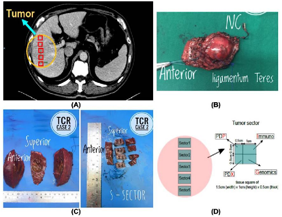 Figure 2 for Multi-Phase Cross-modal Learning for Noninvasive Gene Mutation Prediction in Hepatocellular Carcinoma