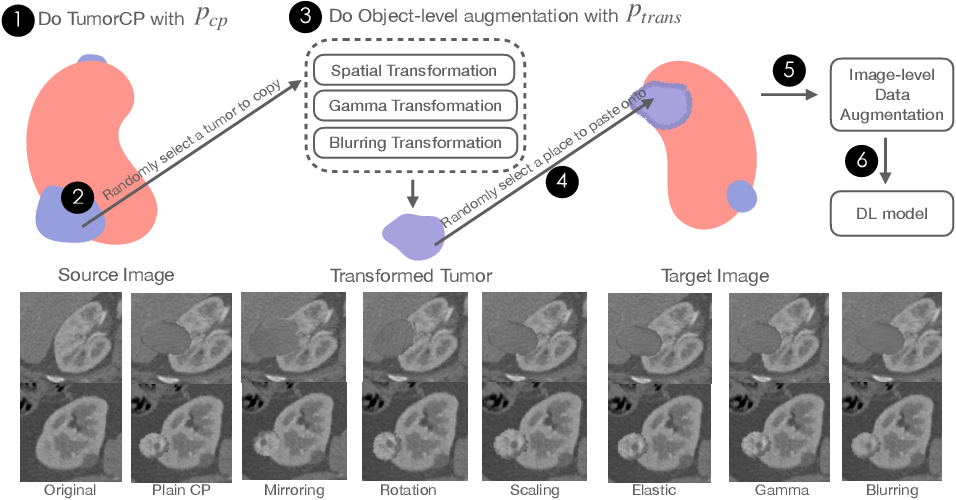 Figure 1 for TumorCP: A Simple but Effective Object-Level Data Augmentation for Tumor Segmentation