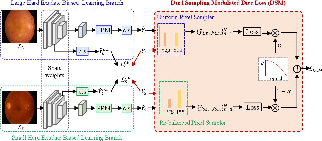 Figure 3 for Dual-Branch Network with Dual-Sampling Modulated Dice Loss for Hard Exudate Segmentation from Colour Fundus Images