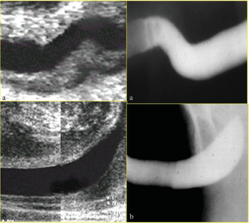 Figure 4 From Ultrasound Of The Male Anterior Urethra Semantic