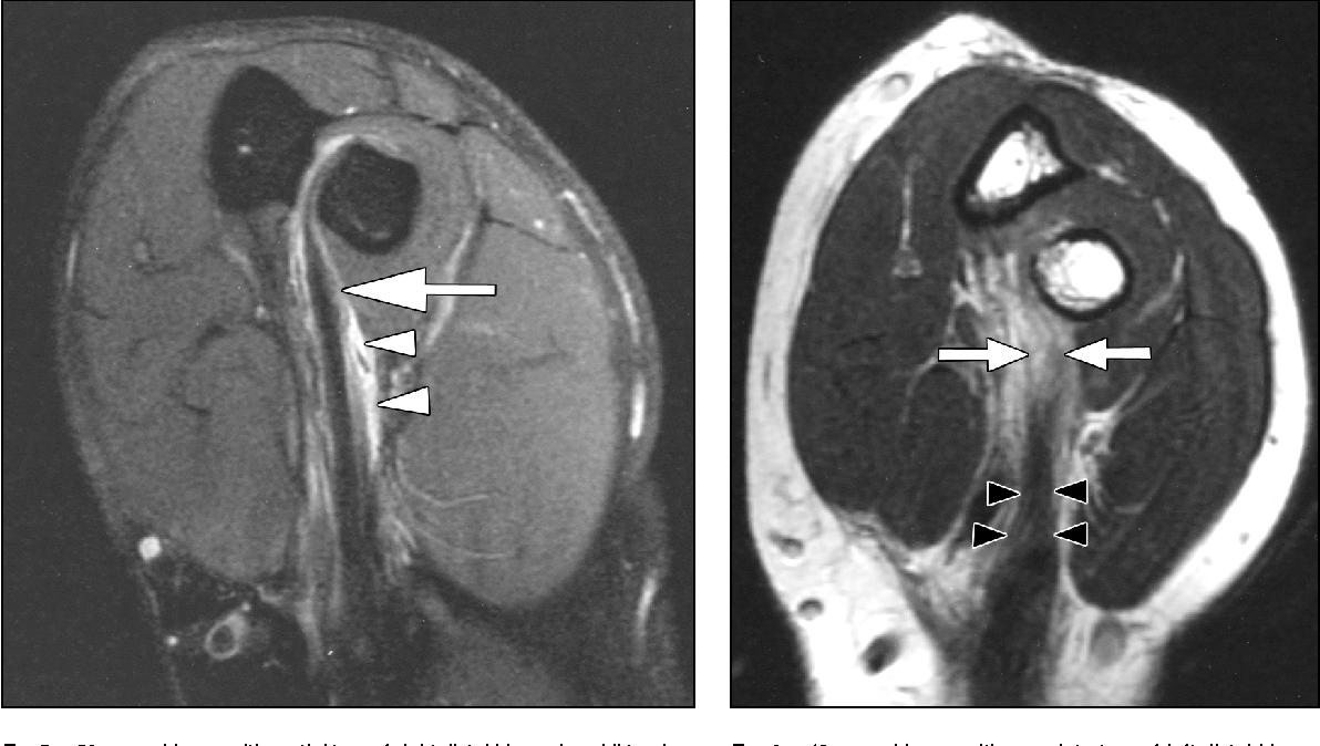 Optimal positioning for MRI of the distal biceps brachii tendon ...