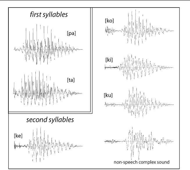 Fast Mapping of Novel Word Forms Traced Neurophysiologically ...