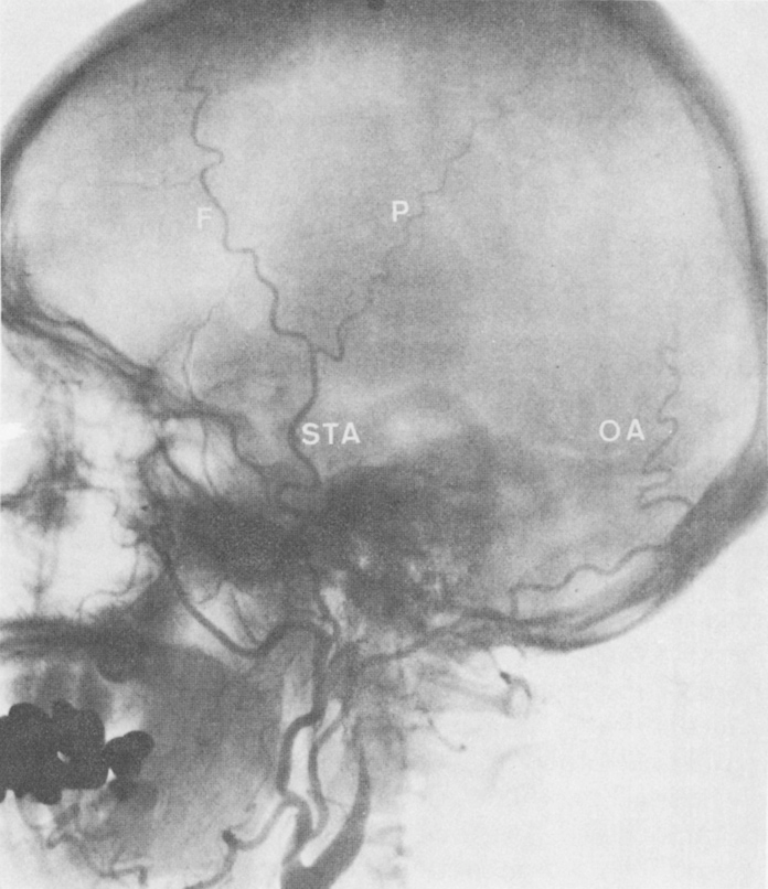 The Extra-Intracranial Bypass Operation for Prevention and Treatment of Stroke
