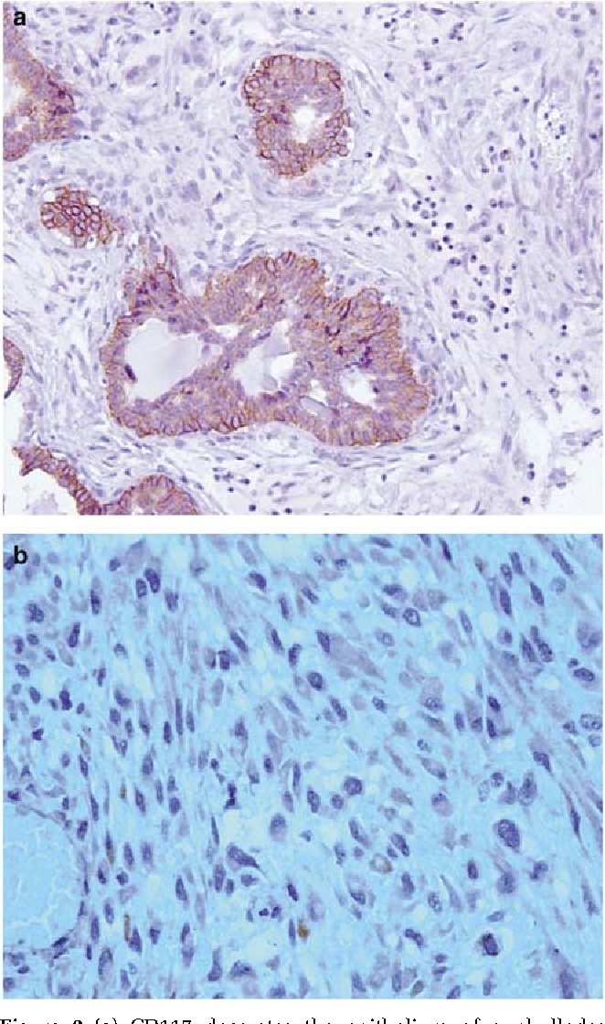 Figure 2 (a) CD117 decorates the epithelium of a phyllodes tumor, with cytoplasmic and cytoplasmic membrane staining. (b) CD117 cytoplasmic positivity in stromal cells of a phyllodes tumor.