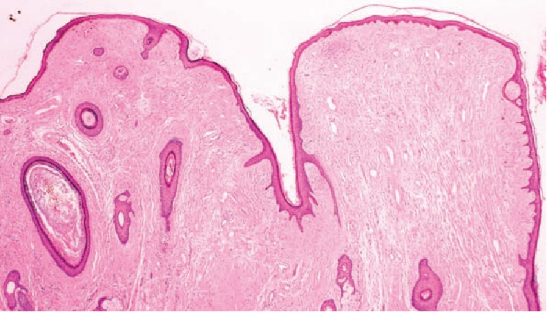 Fibrofolliculoma/trichodiscoma and fibrous papule (perifollicular