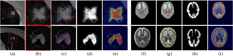 Figure 1 for Medical Matting: A New Perspective on Medical Segmentation with Uncertainty
