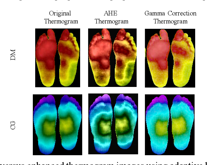 Figure 4 for A Machine Learning Model for Early Detection of Diabetic Foot using Thermogram Images