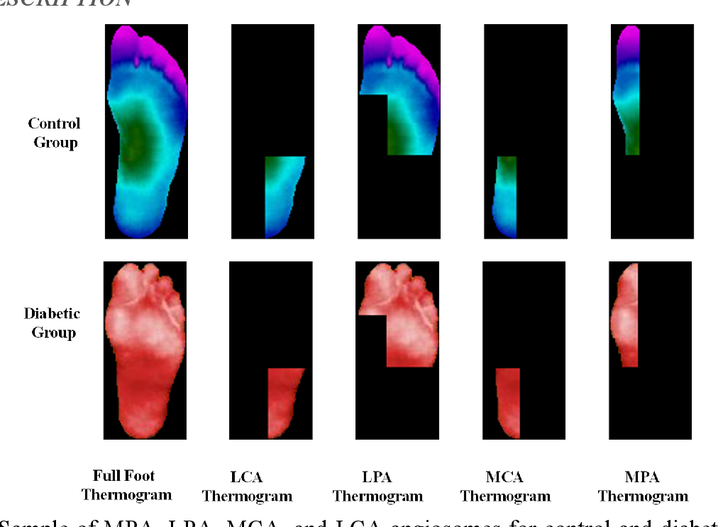 Figure 2 for A Machine Learning Model for Early Detection of Diabetic Foot using Thermogram Images