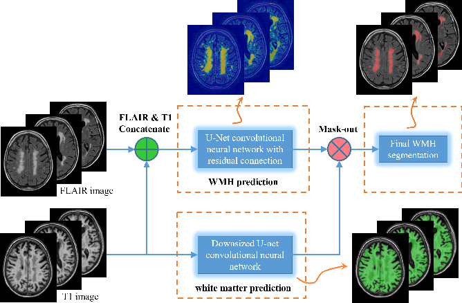 Figure 3 for White matter hyperintensity segmentation from T1 and FLAIR images using fully convolutional neural networks enhanced with residual connections