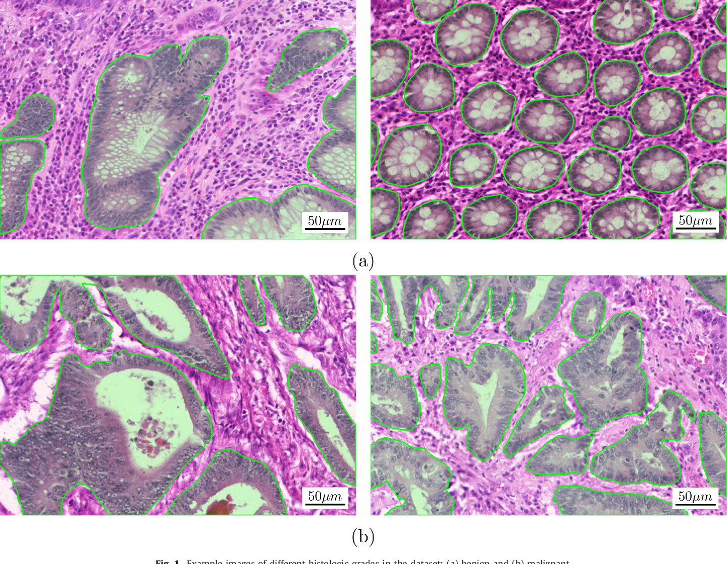 Figure 1 for Gland Segmentation in Colon Histology Images: The GlaS Challenge Contest