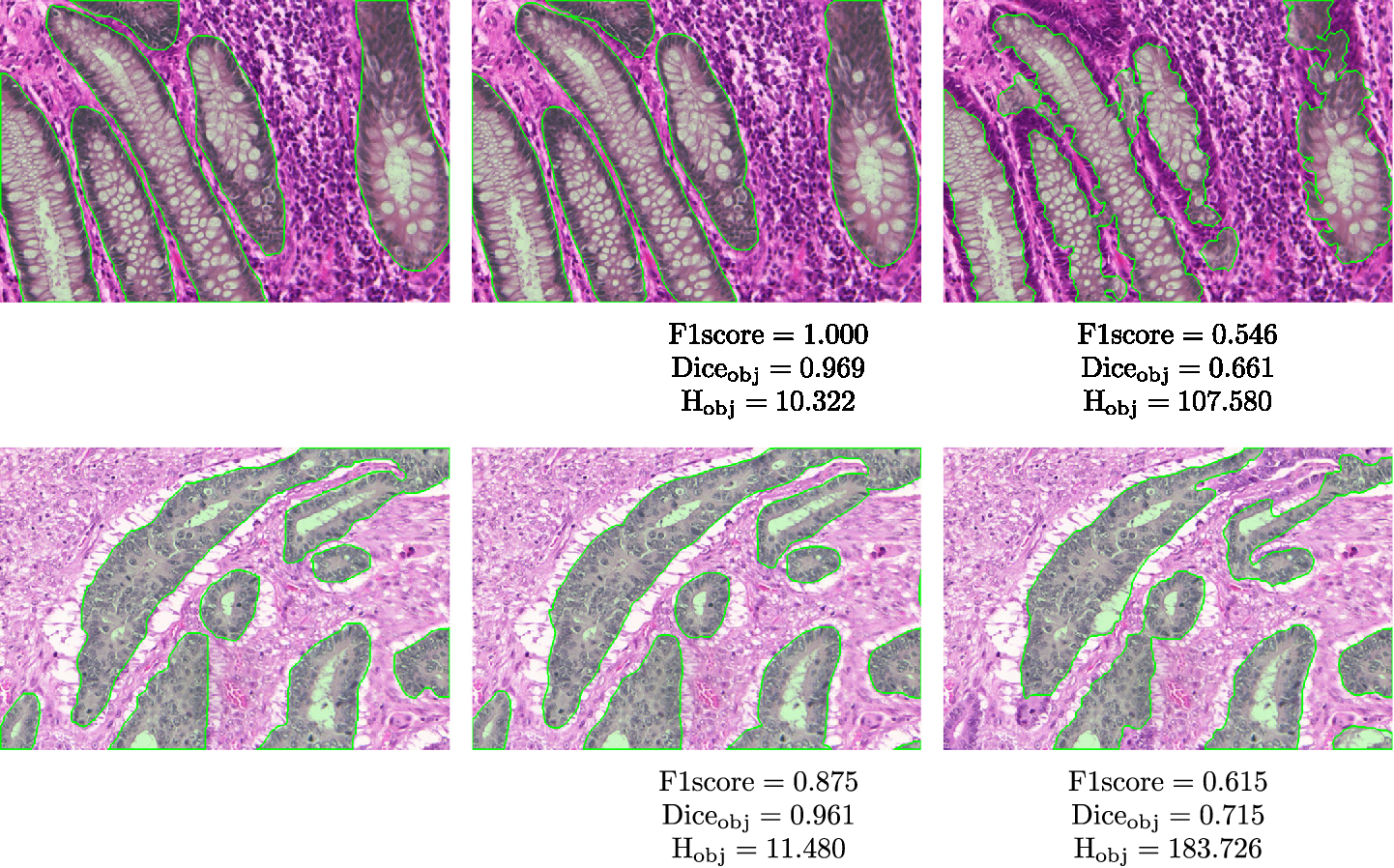 Figure 4 for Gland Segmentation in Colon Histology Images: The GlaS Challenge Contest