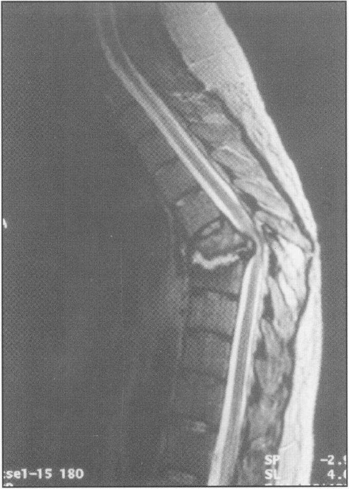 Sagittal T2 Weighted MRI Of Thoracic Spine Shows Spinal Cord Compression And Vertebral