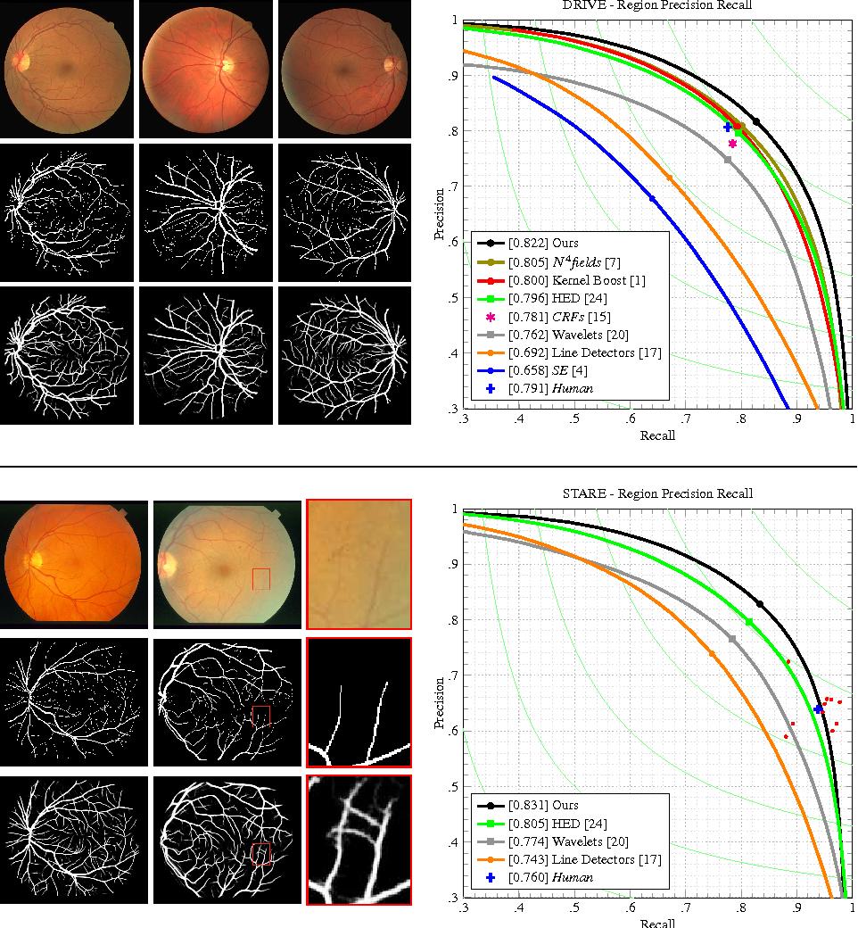 Figure 2 for Deep Retinal Image Understanding