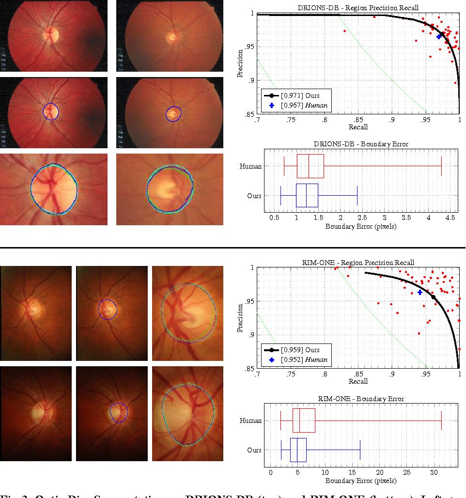 Figure 3 for Deep Retinal Image Understanding
