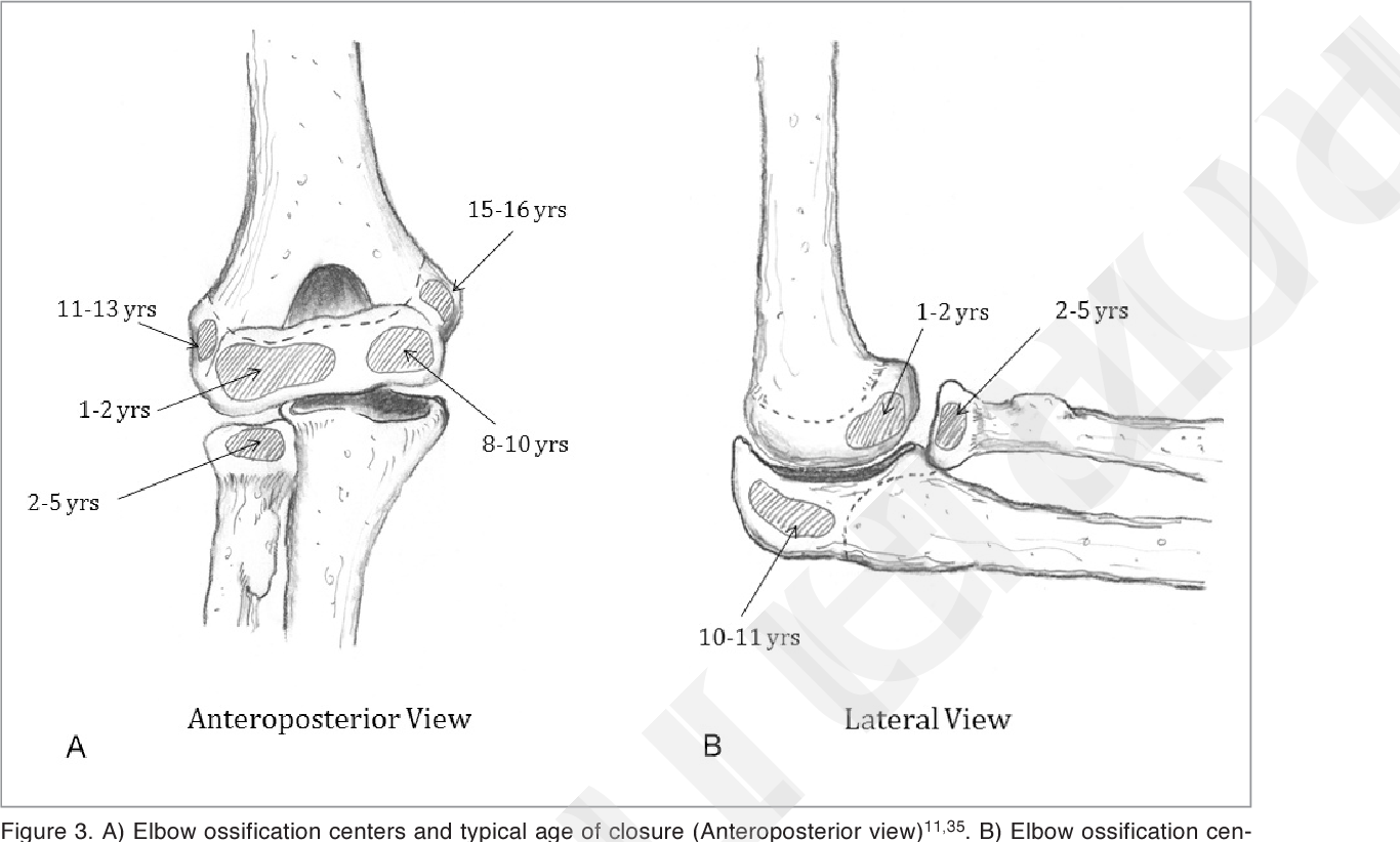 Figure 3 From Medial Elbow Injury In Young Throwing Athletes