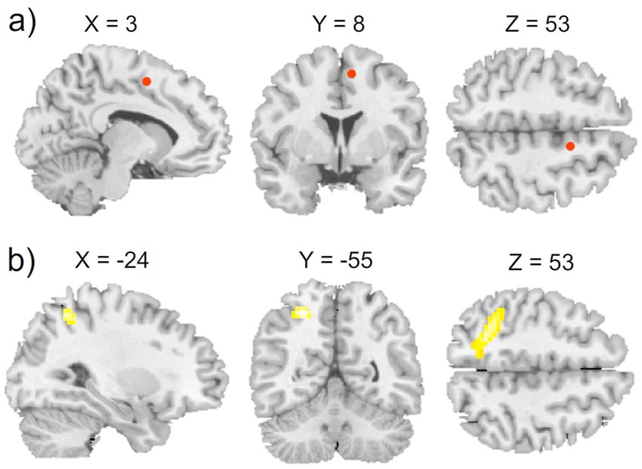 Investigating the Role of the Right Inferior Frontal Gyrus in ...