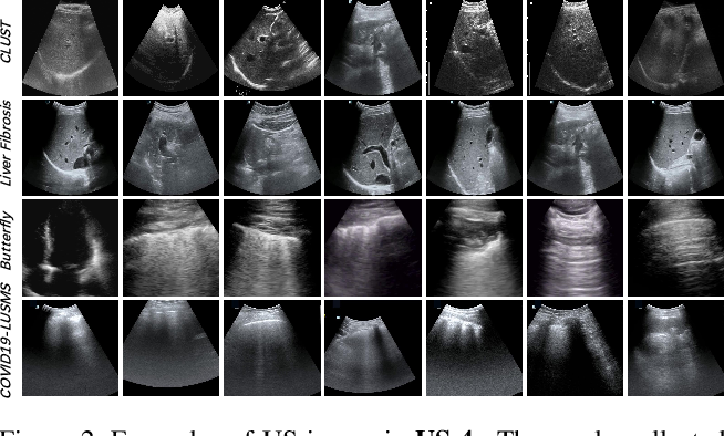 Figure 3 for Effective Sample Pair Generation for Ultrasound Video Contrastive Representation Learning
