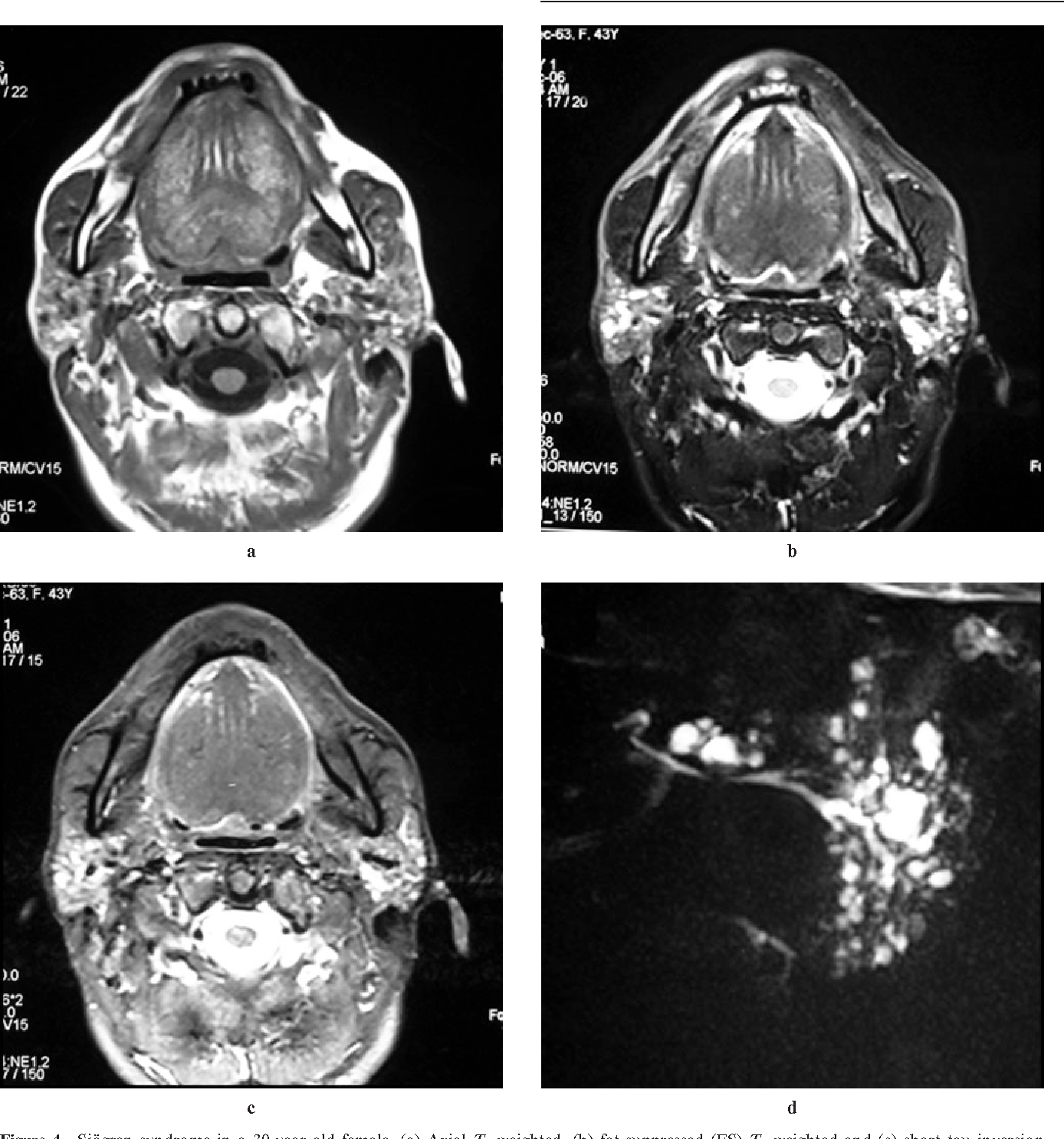 Figure 4 from Bilateral parotid swelling: a radiological review ...