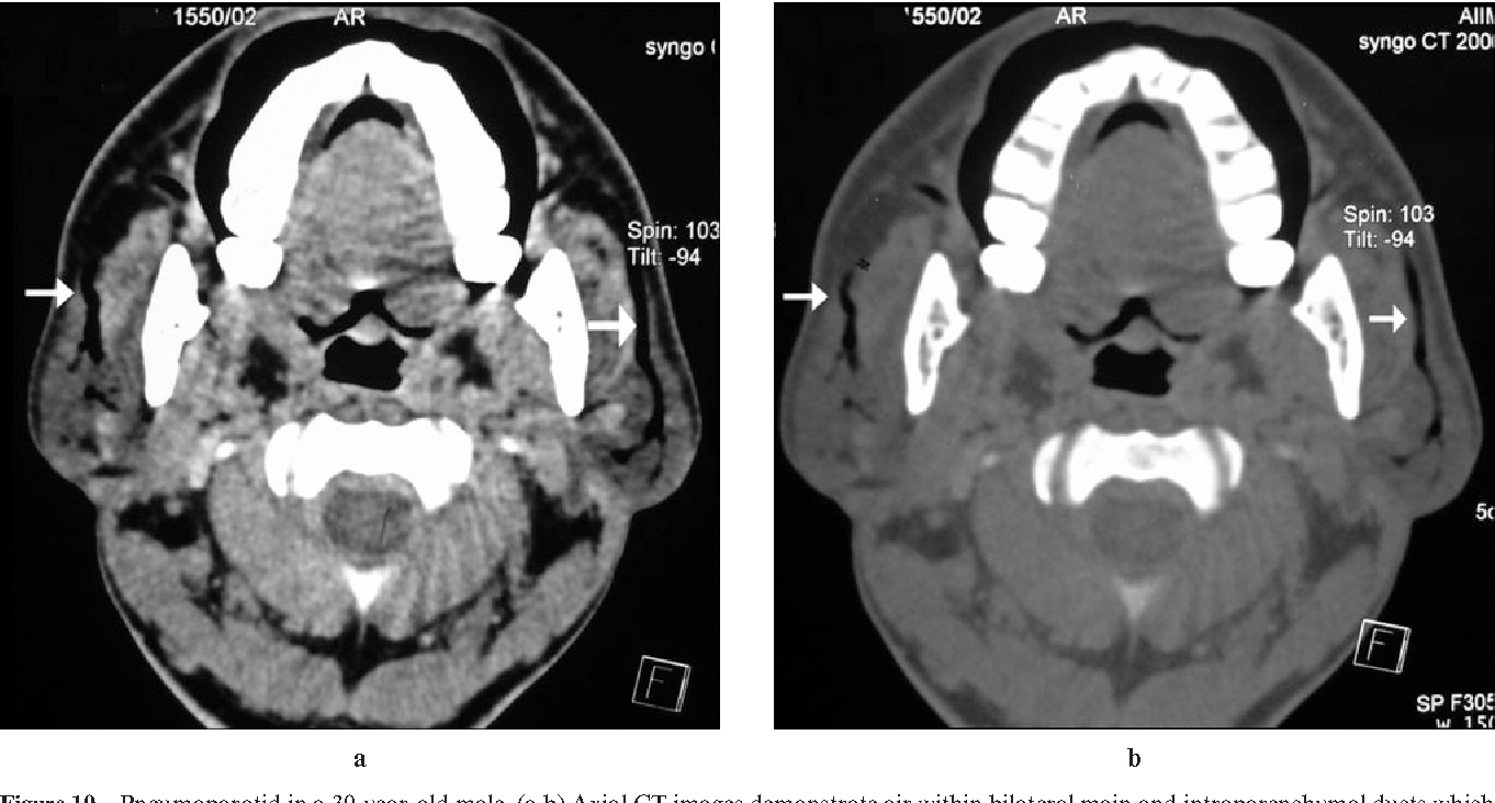 Figure 10 from Bilateral parotid swelling: a radiological review ...