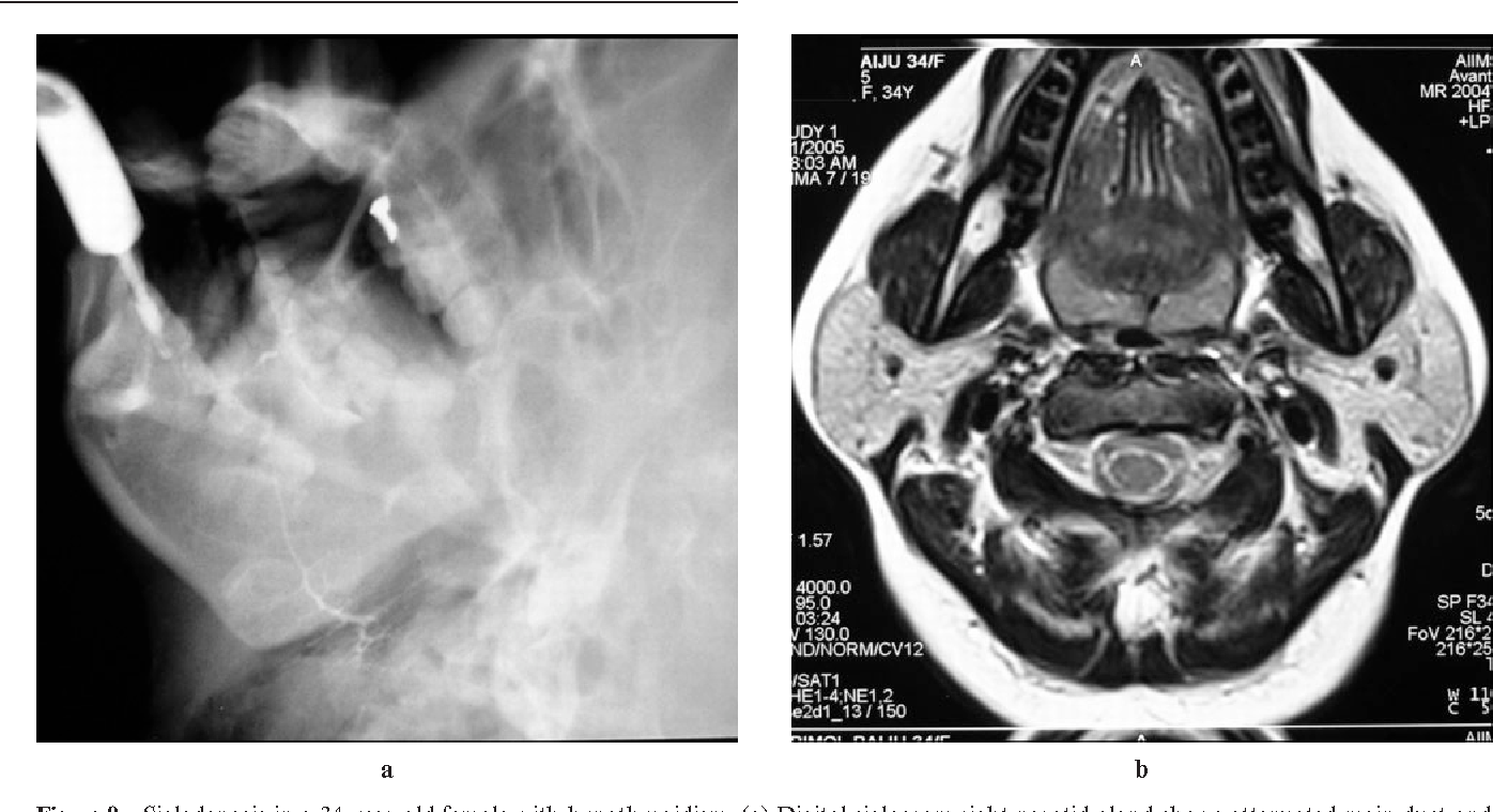 Figure 9 from Bilateral parotid swelling: a radiological review ...