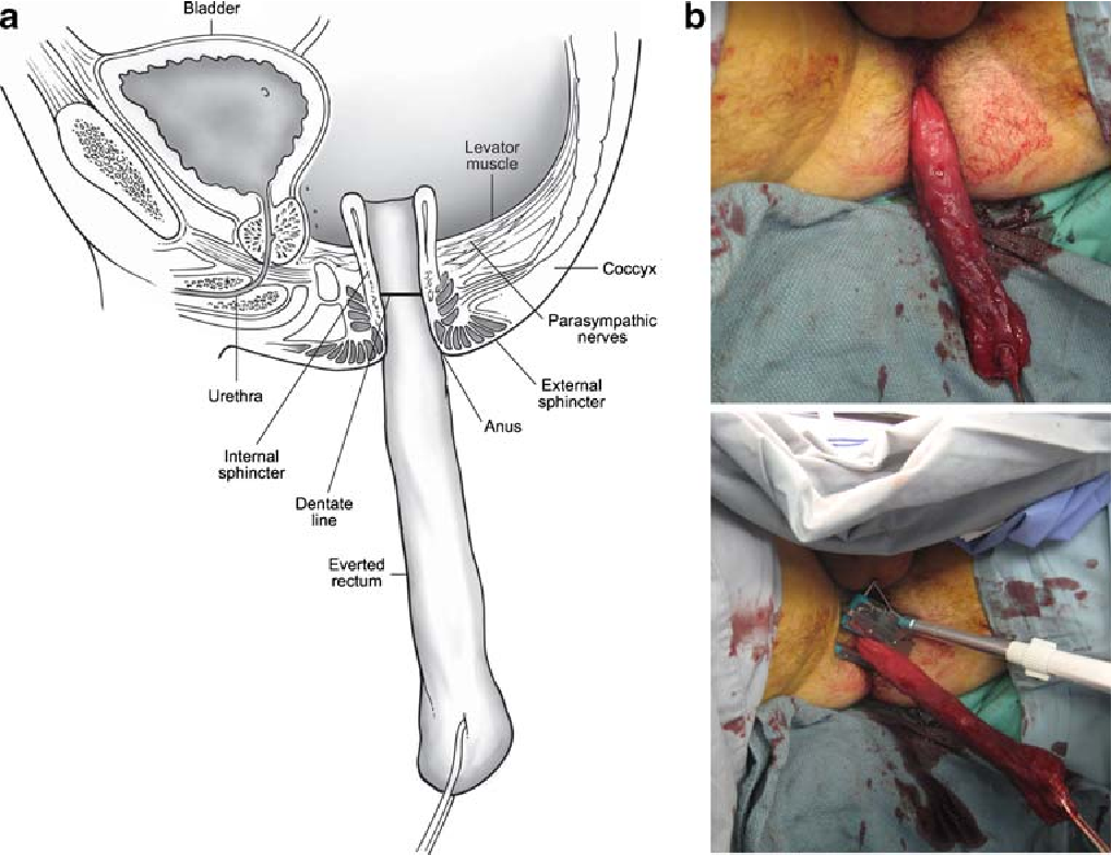 Total Proctocolectomy with Ileoanal J-Pouch Reconstruction Utilizing ...