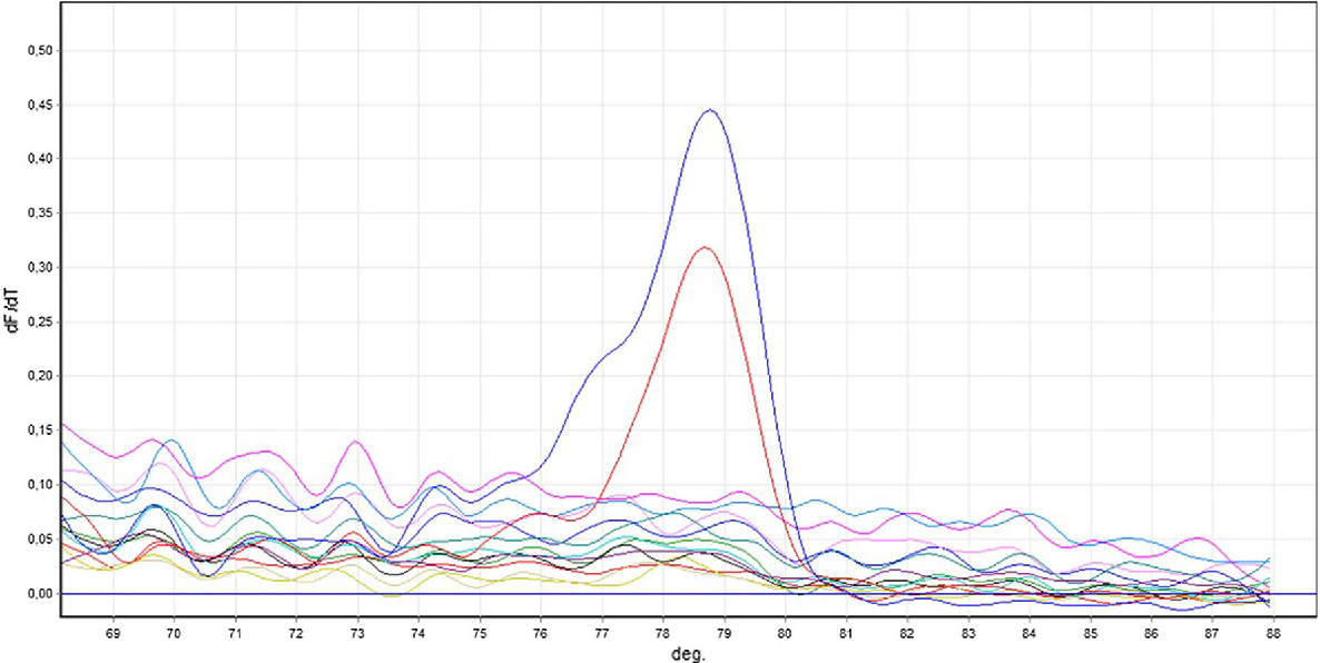 Fig. 1 Melting curves generated after PCR with HP specific primers in laryngeal SCC samples