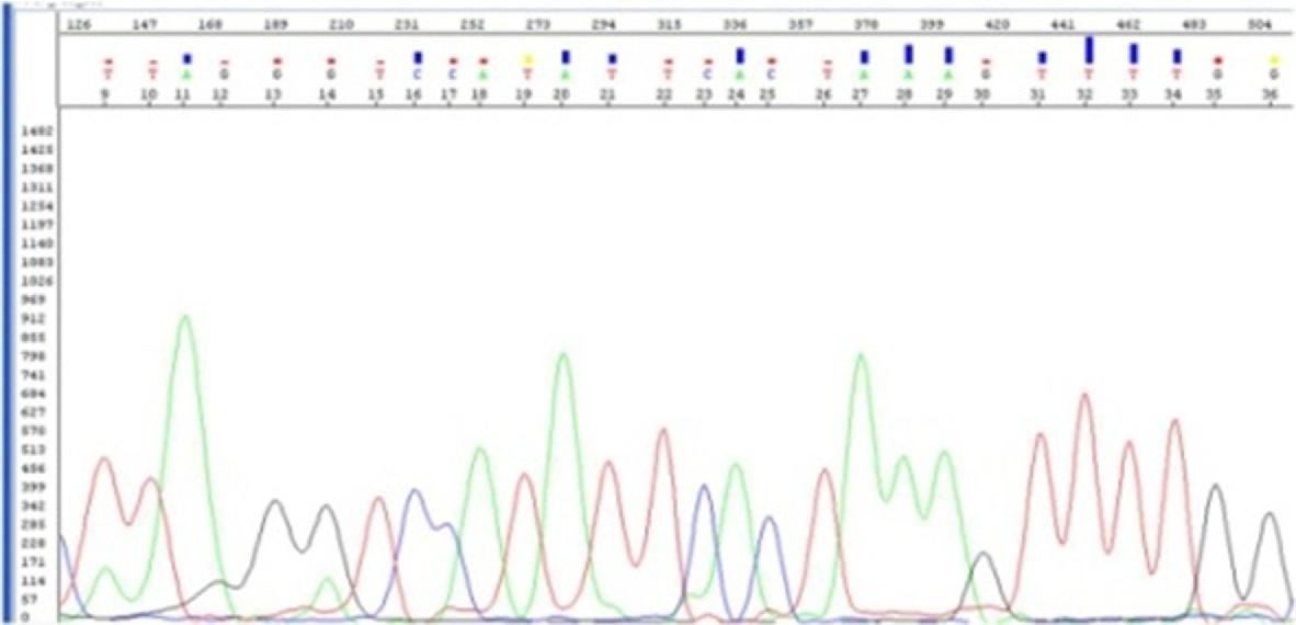 Fig. 2 Sequencing electropherogram of HP positive case