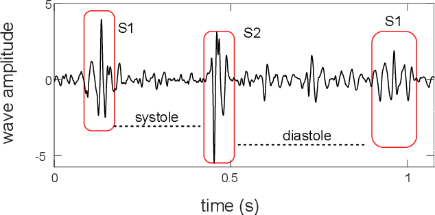 Figure 1 for Heart Sound Segmentation using Bidirectional LSTMs with Attention