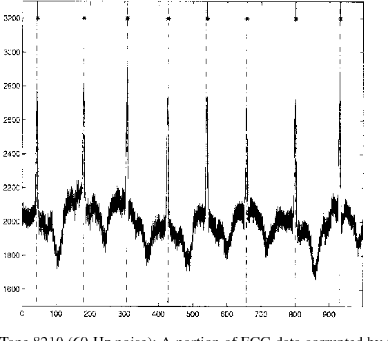 Fig. 5. Tape 8210 (60-Hz noise): A portion of ECG data corrupted by 60-Hz powerline noise plotted with vertical dashed lines indicating cardiologist estimate of the QRS onset and with tic marks indicating the DyWT estimate of the R wave locations.