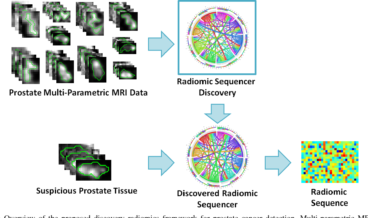 Figure 1 for Discovery Radiomics for Multi-Parametric MRI Prostate Cancer Detection