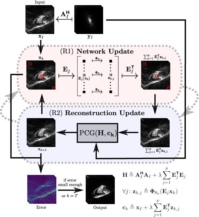 Figure 1 for Unsupervised Adaptive Neural Network Regularization for Accelerated Radial Cine MRI