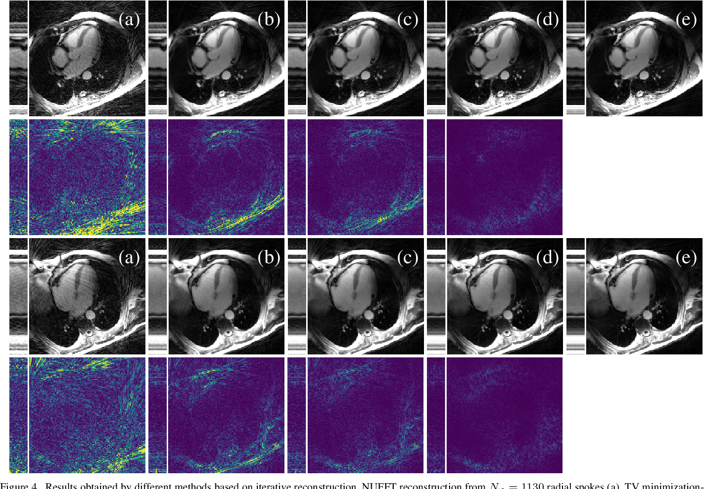 Figure 3 for Unsupervised Adaptive Neural Network Regularization for Accelerated Radial Cine MRI