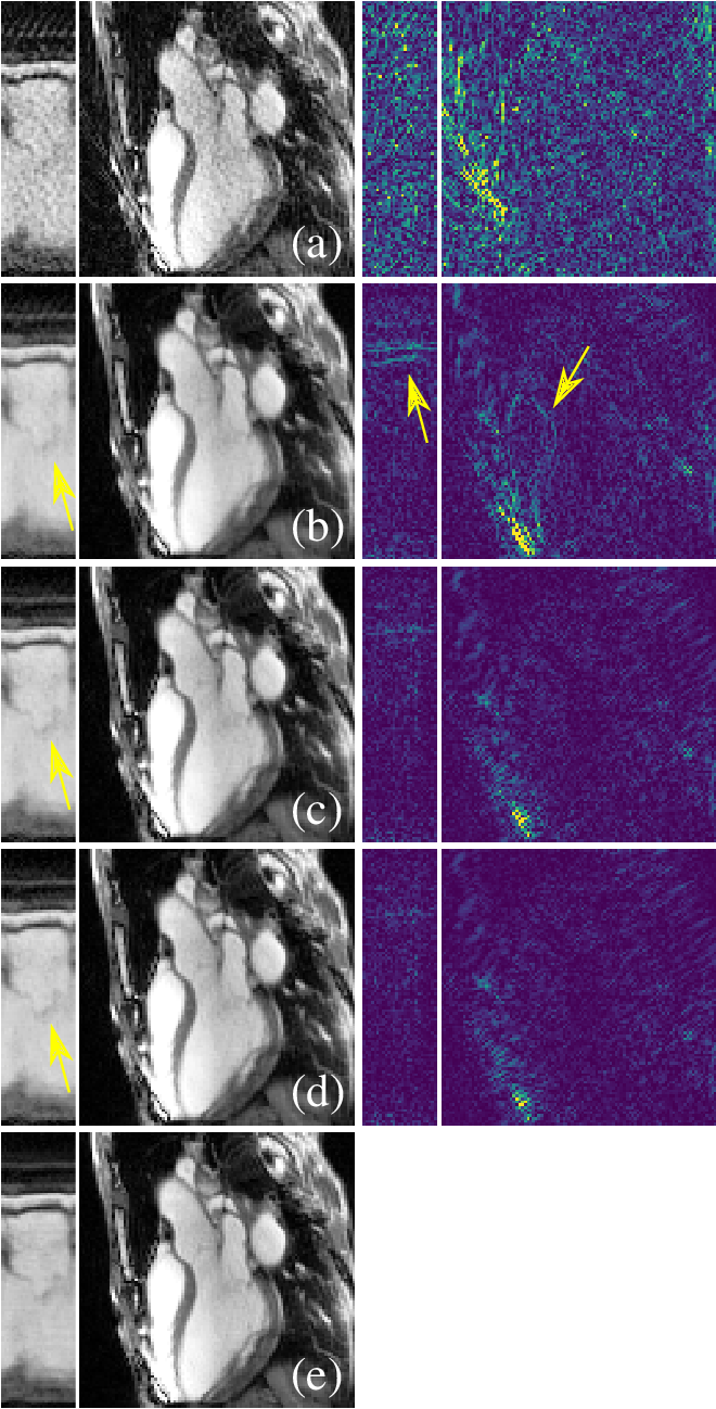 Figure 4 for Unsupervised Adaptive Neural Network Regularization for Accelerated Radial Cine MRI